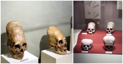 10 amazing facts about the ancient Peruvian elongated skulls